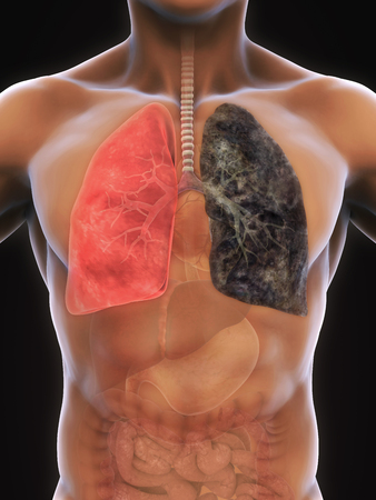 smokers: Healthy Lung and Smokers Lung Stock Photo