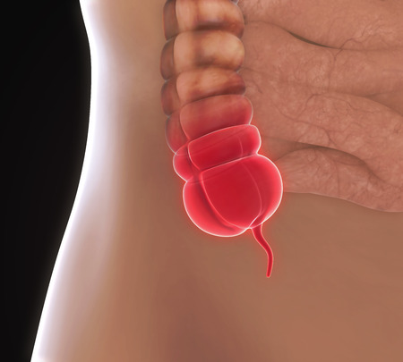appendix: Appendix Pain Illustration