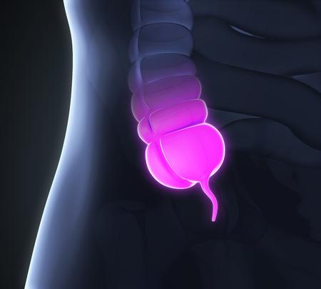 appendix ileum: Appendix Pain Illustration