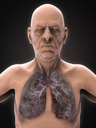 emphysema: Elderly Male with Lung Cancer Illustration
