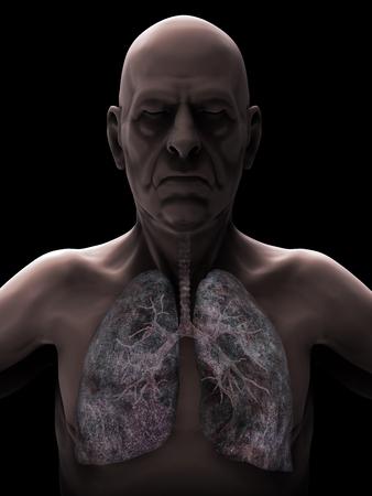 chronic bronchitis: Elderly Male with Lung Cancer Illustration