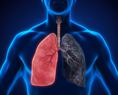 chronic bronchitis: Healthy Lung and Smokers Lung Stock Photo