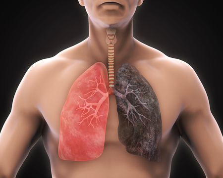 emphysema: Healthy Lung and Smokers Lung Stock Photo