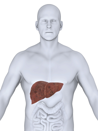 jejunum: Unhealthy Liver Anatomy