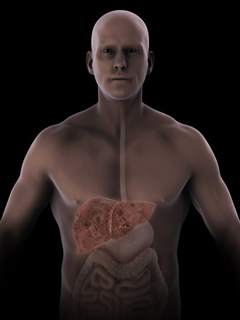 alcoholic: Unhealthy Liver Anatomy