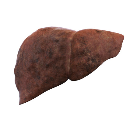 fatty liver: Unhealthy Liver Anatomy Isolated