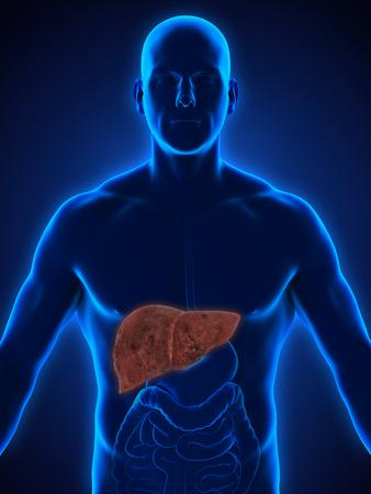 bile duct: Unhealthy Liver Anatomy