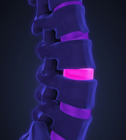 degenerative: Human Spine Disc Degenerative