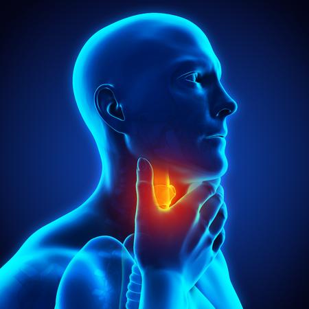 Halsschmerzen Illustration Standard-Bild