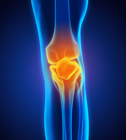Painful Knee Illustration Stock Photo
