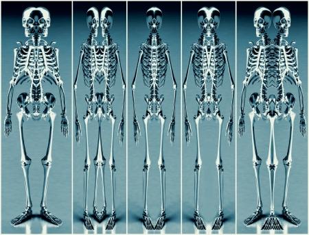 Five Silver Blue Alien Skeleton photo