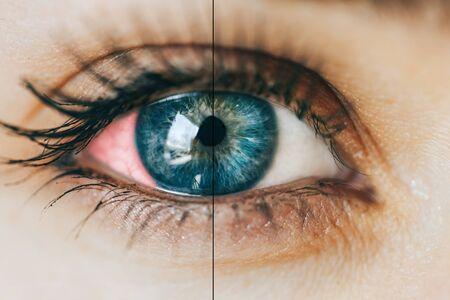 sick red eye 版權商用圖片