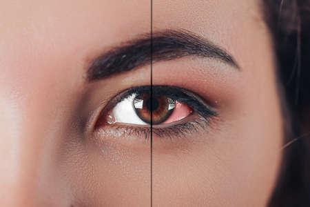 Sick female eye close up, eye treatment 版權商用圖片