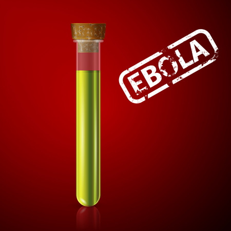 doctor examines a tube with blood infected with ebola virus Stock Vector - 35354126