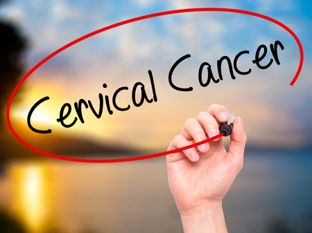 vaginal: Man Hand writing Cervical Cancer with black marker on visual screen. Isolated on background. Business,  technology, internet concept. Stock Photo