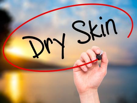 Man mano che scrive Dry Skin con pennarello nero su schermo visivo. Isolato sulla natura Medicina, tecnologia, concetto di internet. Immagine di riserva