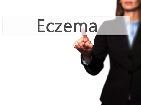 Eczema - Businesswoman hand pressing button on touch screen interface. Business, technology, internet concept. Stock Photo Stok Fotoğraf