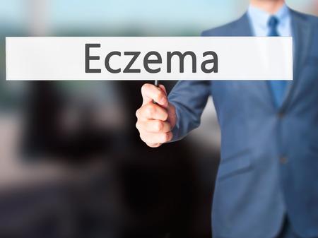 Eczema - Businessman hand holding sign. Business, technology, internet concept. Stock Photo