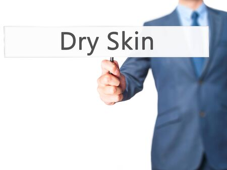Dry Skin - Businessman hand holding sign. Business, technology, internet concept. Stock Photo