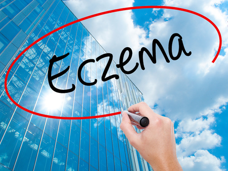 Man Hand writing Eczema with black marker on visual screen.  Business, technology, internet concept. Modern business skyscrapers background. Stock Photo Stock Photo
