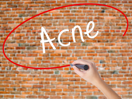 Woman Hand Writing Acne with black marker on visual screen. Isolated on bricks. Business concept. Stock Photo
