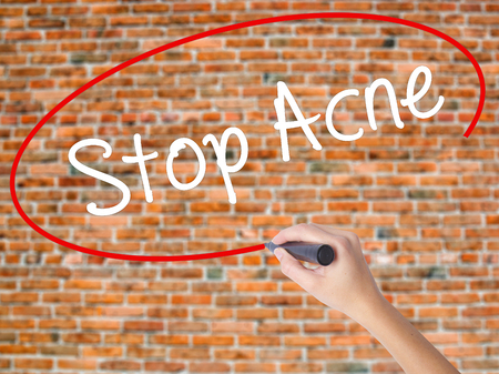 the scars: Woman Hand Writing Stop Acne  with black marker on visual screen. Isolated on bricks. Business concept. Stock Photo