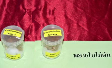 biology instruction: MAHASARAKHAM  JUNE 20 : Bithynia spp. and  cercariae are on display in health assembly seminar at Padung Nari school on June 20 2015 in Mahasarakham Thailand.