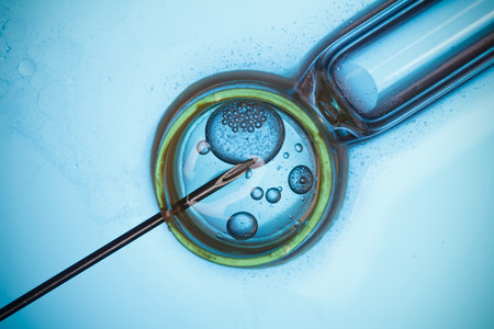 in vitro: In vitro fertilisation, IVF macro concept