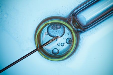 In vitro fertilizace, IVF makro koncepce Reklamní fotografie