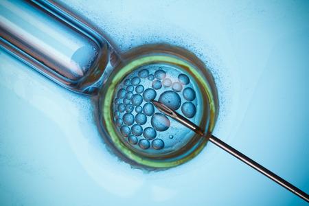 La fécondation in vitro, FIV macro notion
