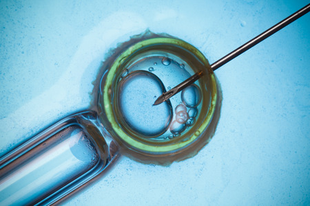 in vitro: La fertilización in vitro, FIV concepto macro
