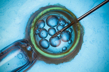 fertilisation: In vitro fertilisation, IVF macro concept