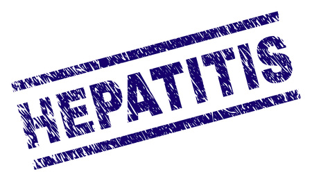 HEPATITIS seal stamp with grunge style. Blue vector rubber print of HEPATITIS text with grunge texture. Text title is placed between parallel lines.