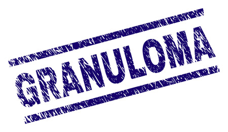 GRANULOMA seal print with scratced style. Blue vector rubber print of GRANULOMA tag with dust texture. Text tag is placed between parallel lines.