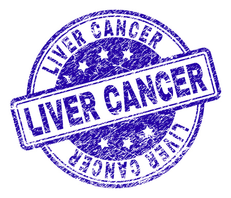 LIVER CANCER stamp seal watermark with grunge texture. Designed with rounded rectangles and circles. Blue vector rubber print of LIVER CANCER tag with dust texture. 일러스트