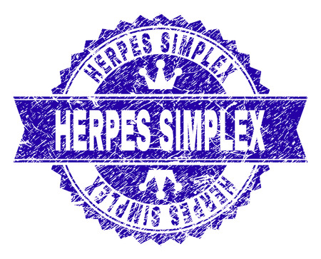 HERPES SIMPLEX rosette stamp seal watermark with distress style. Designed with round rosette, ribbon and small crowns. Blue vector rubber watermark of HERPES SIMPLEX caption with unclean style.