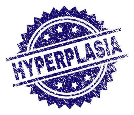 HYPERPLASIA stamp seal watermark with distress style. Blue vector rubber print of HYPERPLASIA label with dust texture.