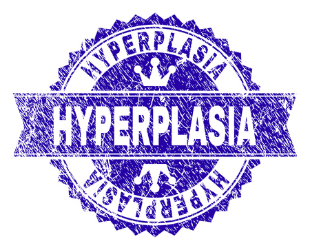 HYPERPLASIA rosette seal watermark with grunge texture. Designed with round rosette, ribbon and small crowns. Blue vector rubber print of HYPERPLASIA tag with grunge texture.