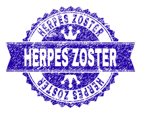 HERPES ZOSTER rosette seal watermark with distress texture. Designed with round rosette, ribbon and small crowns. Blue vector rubber watermark of HERPES ZOSTER label with dust texture.