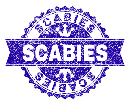 SCABIES rosette seal watermark with grunge effect. Designed with round rosette, ribbon and small crowns. Blue vector rubber watermark of SCABIES caption with grunge style. Illustration