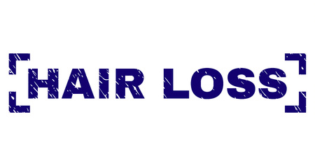 HAIR LOSS text seal print with corroded texture. Text caption is placed inside corners. Blue vector rubber print of HAIR LOSS with corroded texture.