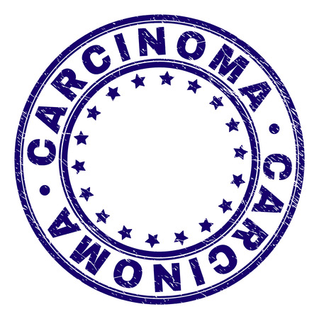 CARCINOMA stamp seal watermark with distress texture. Designed with round shapes and stars. Blue vector rubber print of CARCINOMA label with unclean texture.