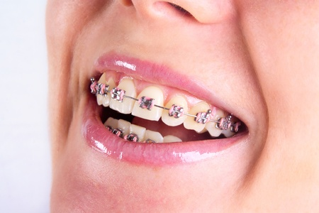ortodoncia: dientes con los apoyos