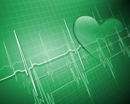 electrocardiograma: Imagen del cuadro latidos del corazón en un fondo de color