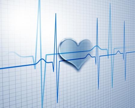 hartaanval: Afbeelding van hartslag beeld op een gekleurde achtergrond Stockfoto
