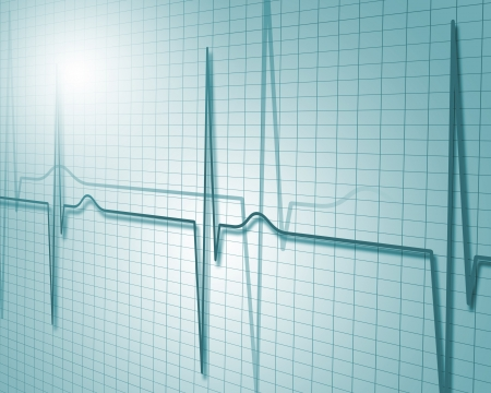 Image of heart beat picture on a colour background Stock Photo - 14910000
