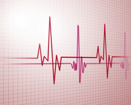 rhythm: Image of heart beat picture on a colour background