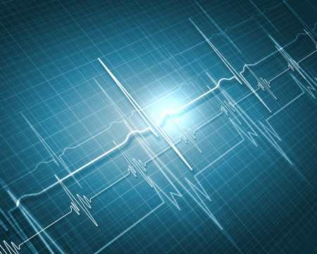 heart beat: Image of heart beat picture on a colour background