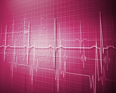 Image of heart beat picture on a colour background Stock Photo - 15007278