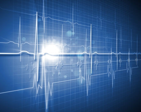 Image of heart beat picture on a colour background Stock Photo - 17022208